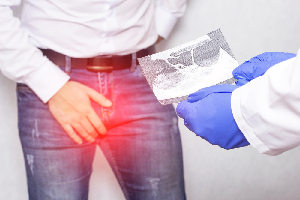 Ischemic Priapism: Causes, Signs, Treatment